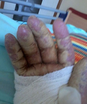 A photo of Lois Morrisons hand taken at Wiltshire Lifecare in Rangiora
