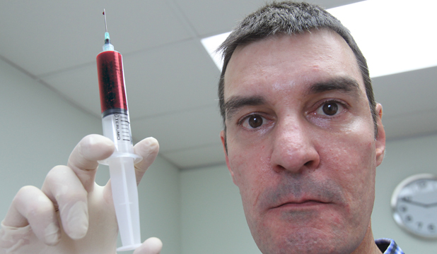 Auckland doctor Paul Nola offers ''vampire facials'' at Ponsonby Cosmetic Medical Centre.